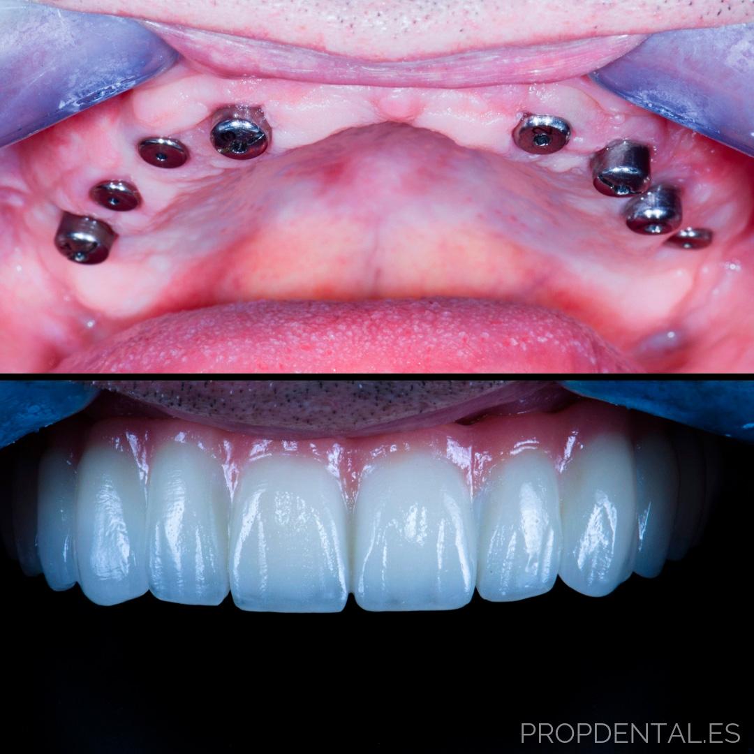 Implant dentaire : un implant pour des années ?